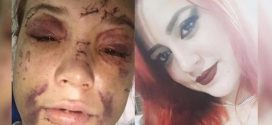 Motorista de aplicativo confessa que agrediu passageira achada ensanguentada