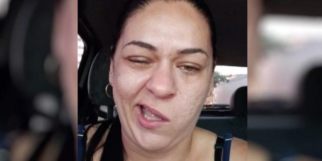 Mulher viraliza na web após ir ao dentista, ficar com a boca torta por causa da anestesia e enviar vídeo para a patroa