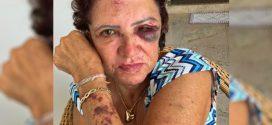 PMs se tornam réus por matar sobrinho de ex-primeira-dama de Itaberaí