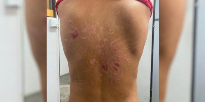 Avó diz que menino torturado pelo pai está traumatizado com agressões e sente dores: 'Acorda gritando'