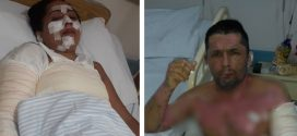 Irmãos morrem após churrasqueira acendida com álcool explodir, em Aparecida de Goiânia